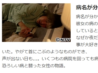 声優・松来未祐さんの闘病生活、『ザ!世界仰天ニュース』にて放送。慢性活動性EBウイルス感染症とは